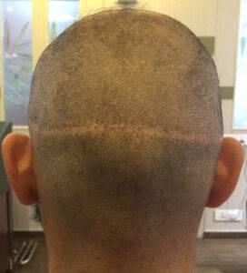 اضرار زراعة الشعر